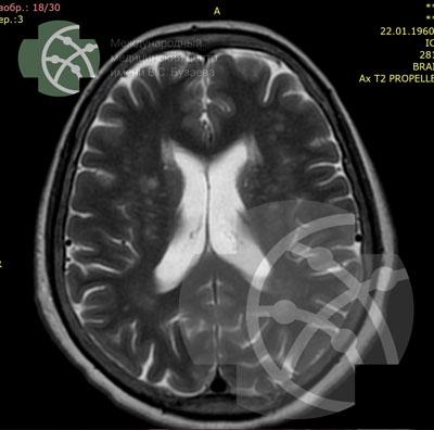 МРТ головного мозга в Уфе